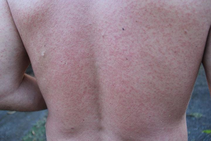 virus-zika-moustique-piqure