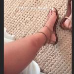 Une miss France attaquée par les moustiques